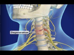 Cervical Spondylosis