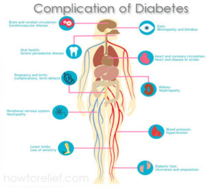 Complication of Diabetes