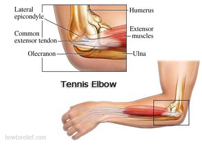 Tennis Elbow Symptom
