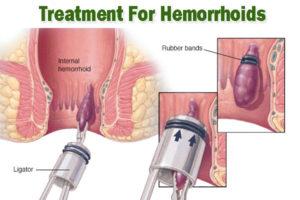 Hemorrhoids Treatment