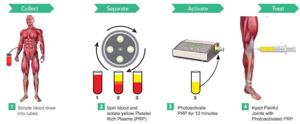 How PRP Work