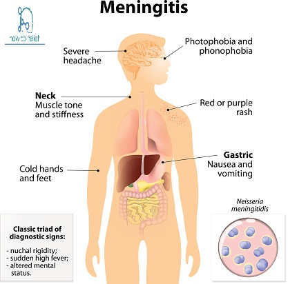 Symptom of Meningitis