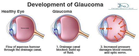 Development of Glaucoma