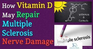 vitamin-d-repair-multiple-sclerosis