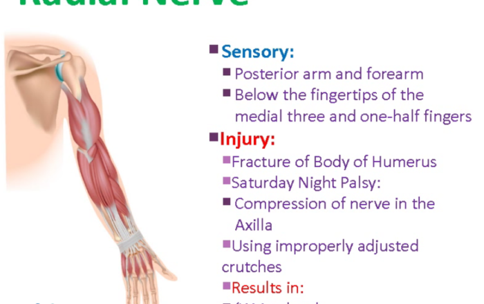 Radial Nerve Common Injuries