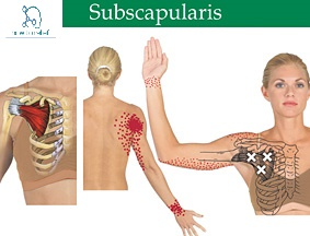 subscapularis muscle tear