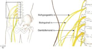 Iliohypogastric Nerve