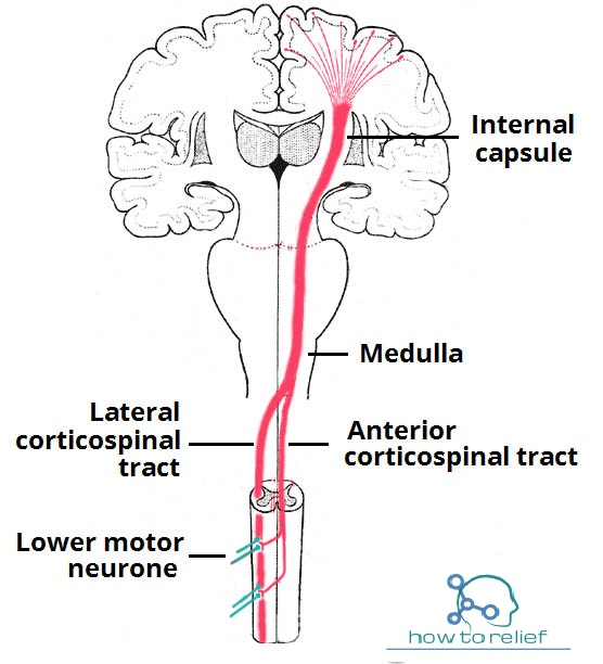Upper Motor Neuron Lesions Sign Symptom How To Relief