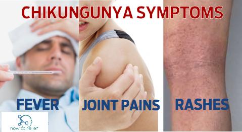 symptom of Chikungunya Fever