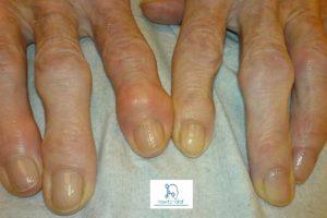 Osteoarthritis and Rheumatoid Arthritis Question