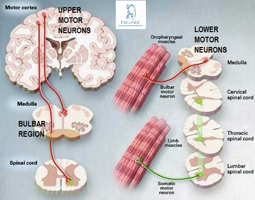 Upper Motor vs. Lower Motor Neuron Disease