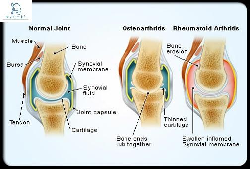 osteoarthritis - Rheumatoid arthritis