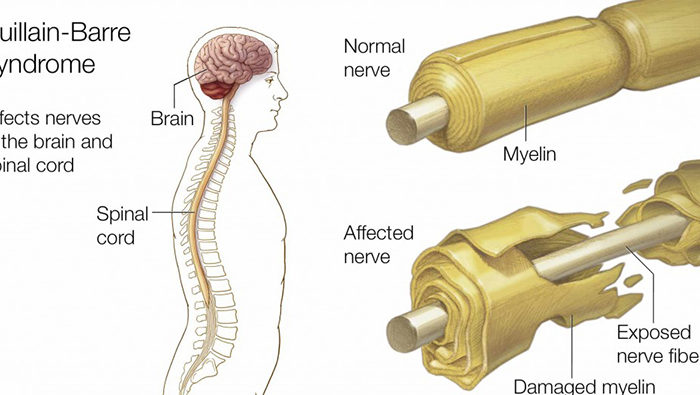 causes of Guillain-Barre-Syndrome