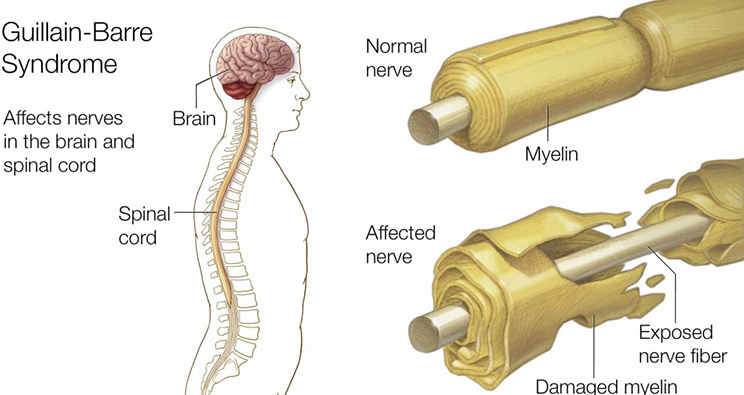 causes of Guillain Barre Syndrome