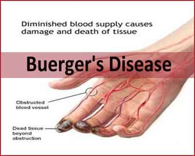 Buergers-Disease-picture