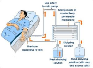 Dialysis Centers in Dhaka