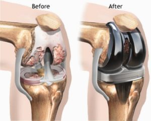 Knee Replacement Surgery Types Procedure Cost