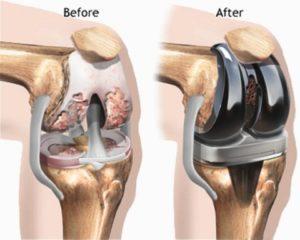 Knee Replacement Surgery procedure