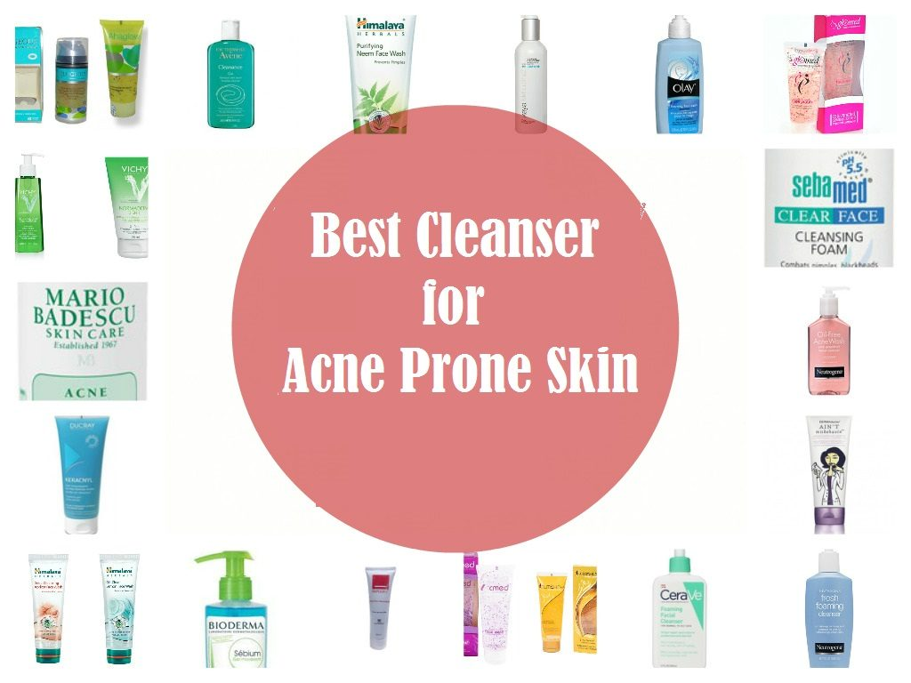 home-remedies-for-Acne-vulgaris