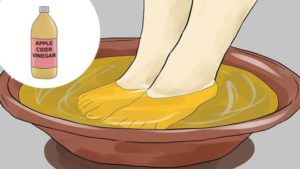 home remedies for athlets foot