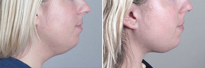 liposuction on neck