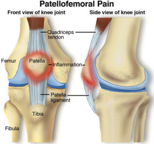runners knee pain