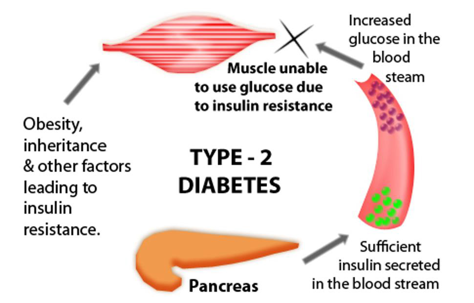 Type-2-Diabetes causes