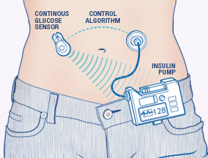 artificial pancreas device