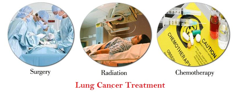 Lung Cancer: Types of Lung Cancer