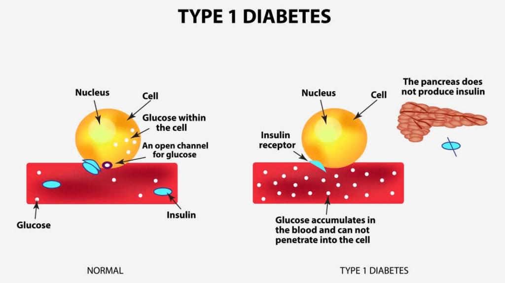 type-1-diabetes causes
