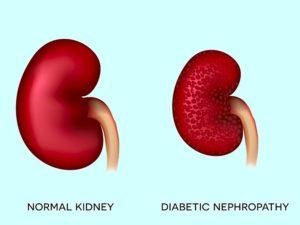 Diabetic-Nephropathy-Treatment