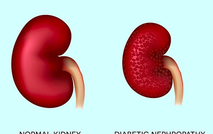 Diabetic-Nephropathy-Treatment
