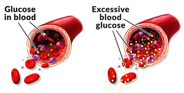 blood-sugar-levels