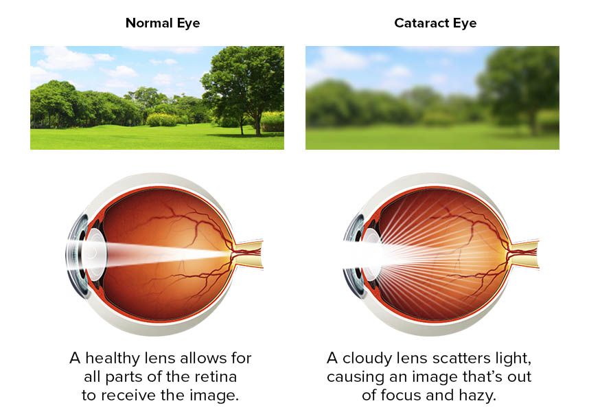 cataracts symptoms