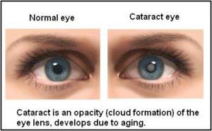 cataracts types