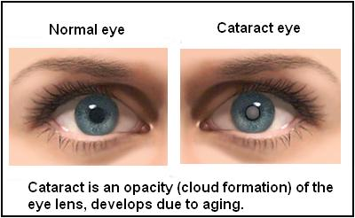 cataracts types
