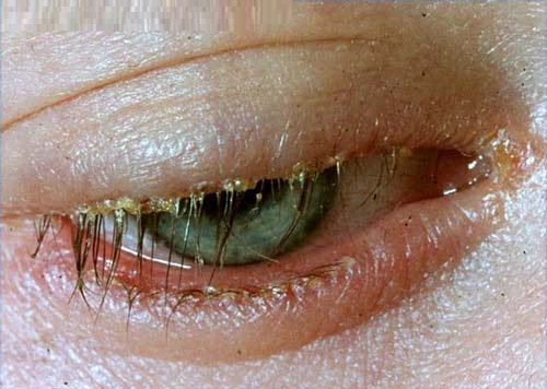 Blepharitis symptoms