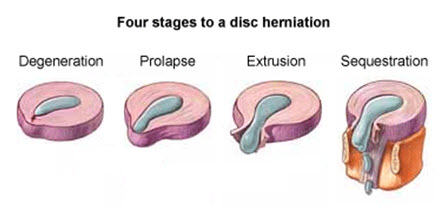 Stages of Disc Herniation
