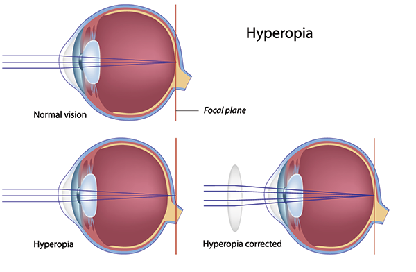 hyperopia-farsightedness-symptom