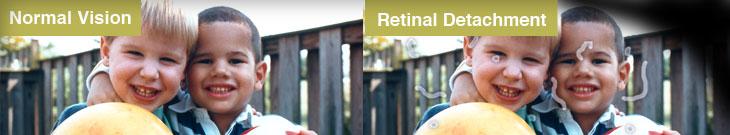 retinal detachment symptom