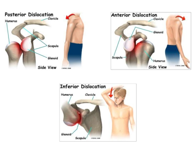 types of shoulder dislocation
