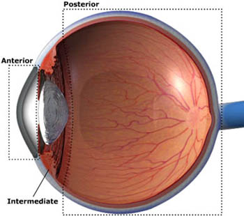 types of uveitis
