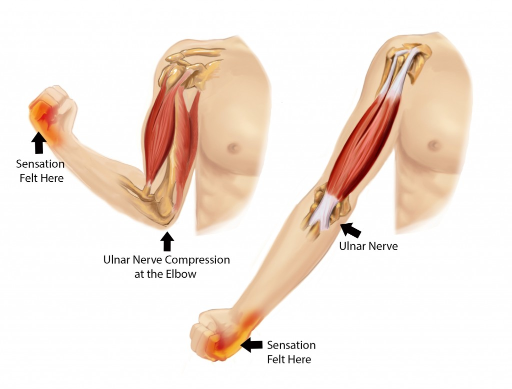 Cubital Tunnel Syndrome : Causes,Symptoms,Diagnosis & Treatment ...