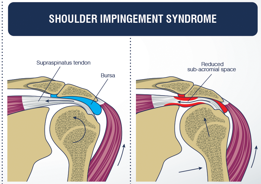 Shoulder Impingement Syndrome Symptomscausesdiagnosis