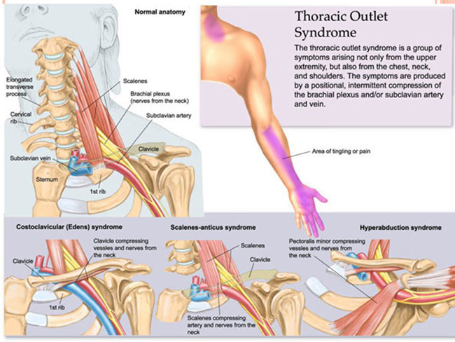 Cervical Rib(Thoracic Outlet Syndrome):Overview,Diagnosis ...