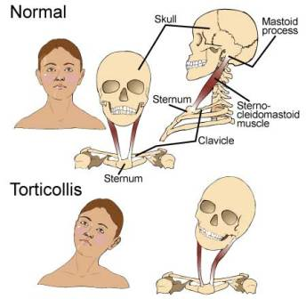 torticollis symptoms