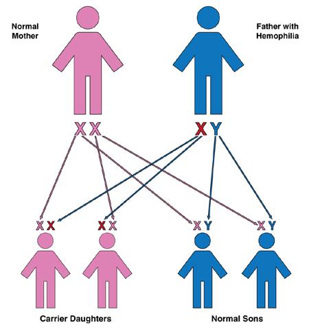 hemophilia causes