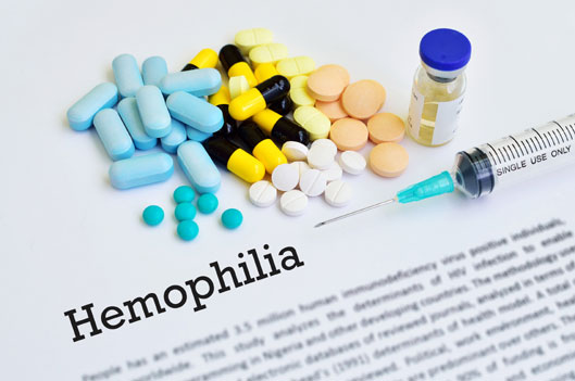 hemophilia treatment