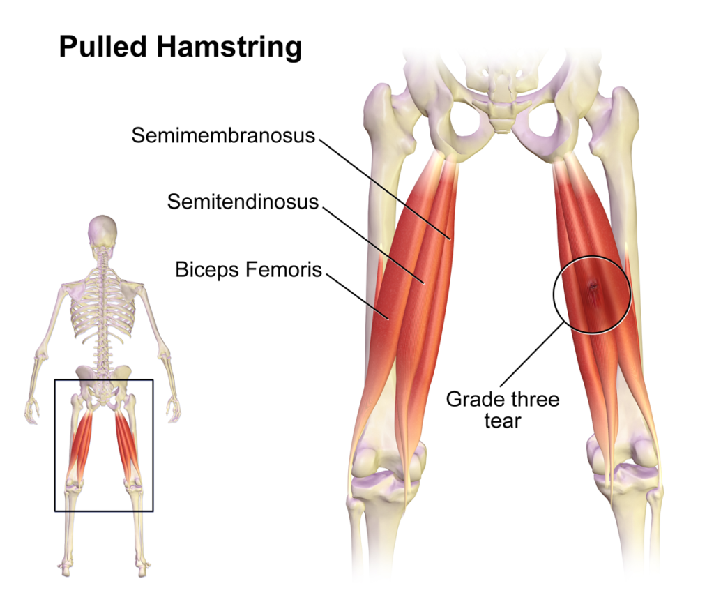 Hamstring Muscles: Overview & Stretching » How To Relief