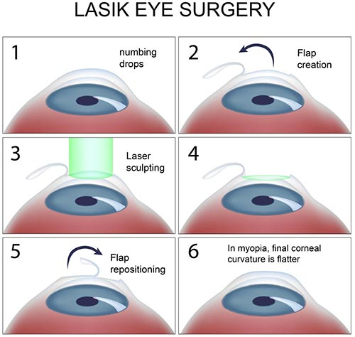 Lasik Eye Surgery Cost Benefits Amp Risks 187 How To Relief